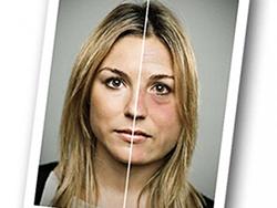 женский алкоголизм последствия для внешности